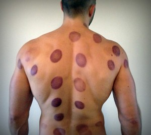 The art of fire cupping. Is it a gimmick?