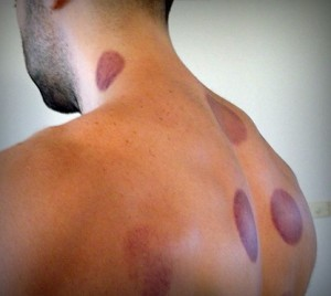 The art of fire cupping therapy. Is it a gimmick?